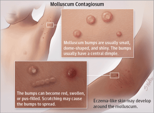 Warts and all how to treat molluscum contagiosum doctor for Molluscum contagiosum swimming pool